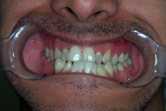 דוקטור, למה יש לי שיניים צהובות ?