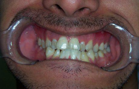 דוקטור, למה יש לי שיניים צהובות?